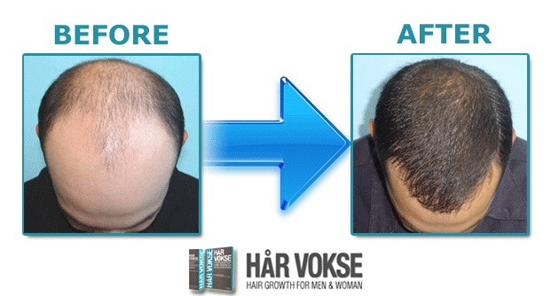 har vokse before and after